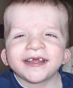 Jared Peterson with no front teeth